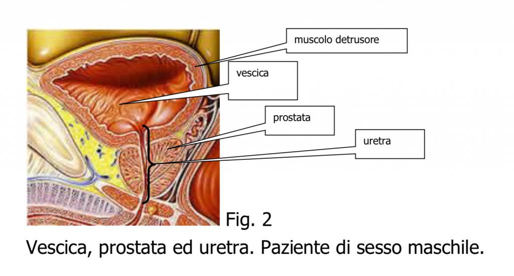 papilloma alla vescica intervento
