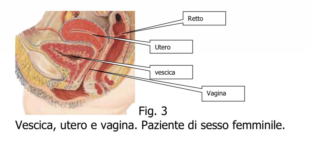 papilloma vescicale recidiva)